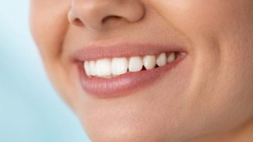 Prednosti ravnih zob in ortodontija